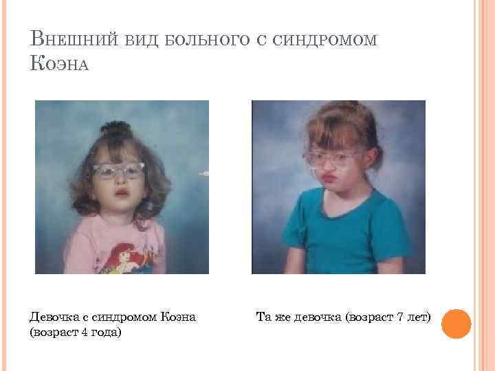 девочка с синдромом коэна